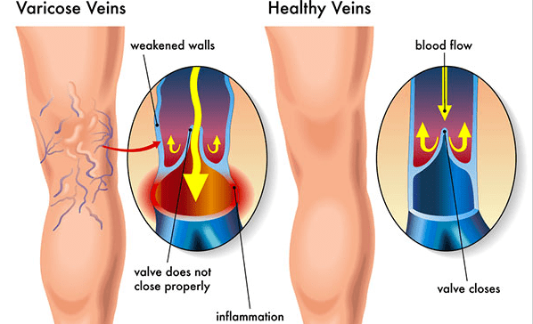 garlic-prevents-inflammation-a-cause-of-varicose-veins-how-to-make-garlic-oil-2