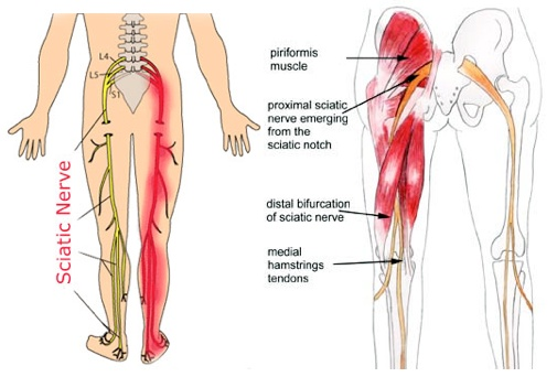 Image result for sciatic nerve pain