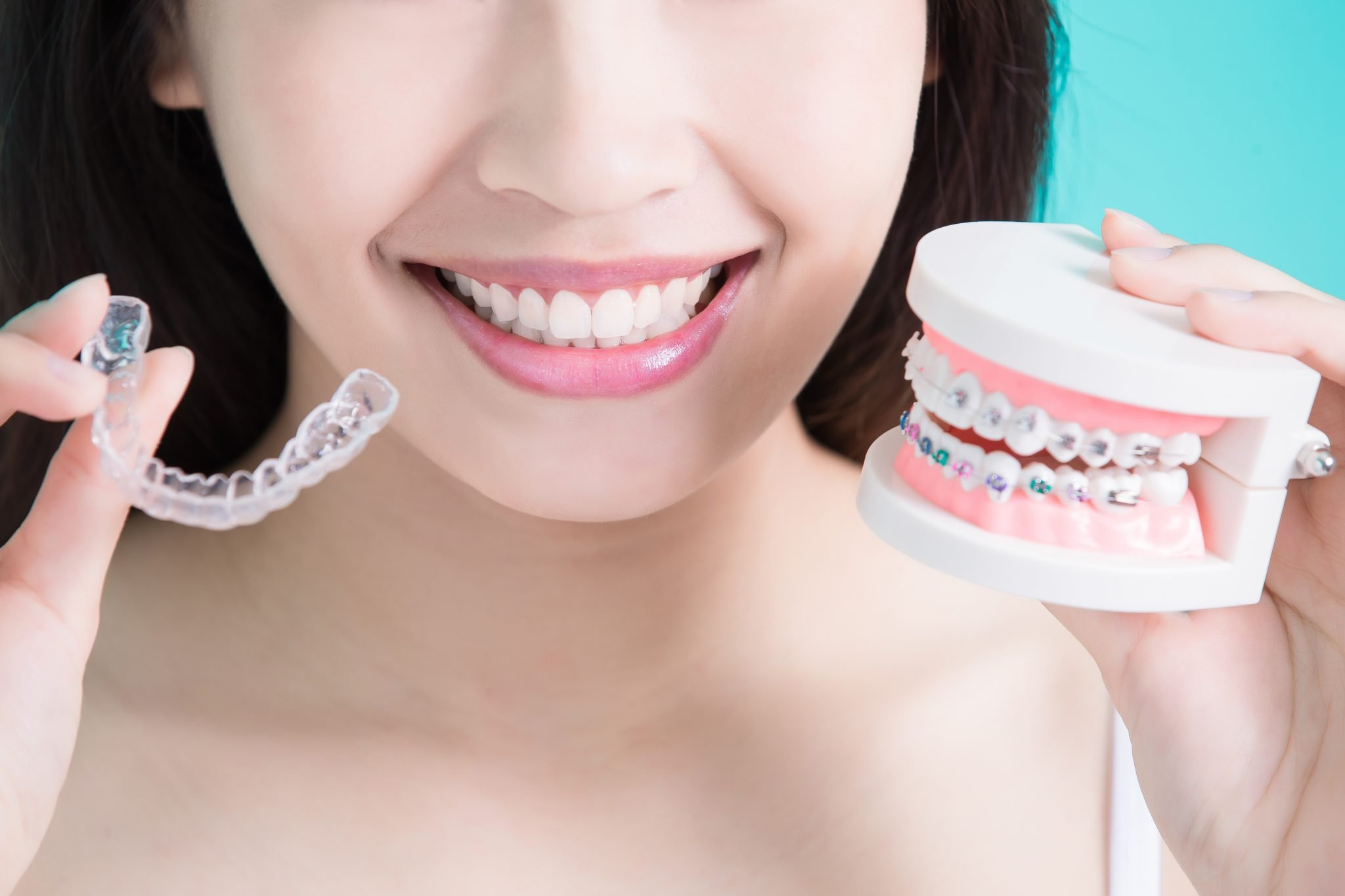 Why One Should Prefer Invisalign Over Braces