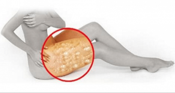-Apple Cider Vinegar Helps Cellulite Disappear Magically!