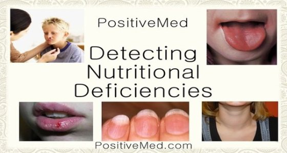 -Detecting Nutritional Deficiencies