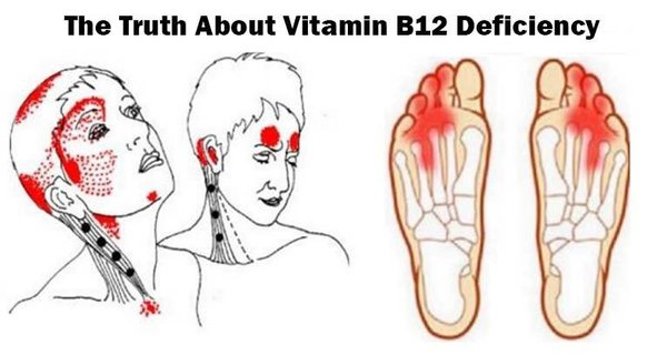 Vitamin B12!!!-Give Me 10 Minutes, I'll Give You The Truth About Vitamin B12 Deficiency