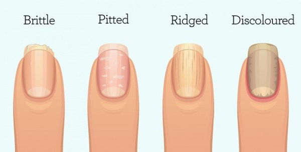 This is What Your Fingernails Are Warning You About: Organ failure, Inflammation, or worse!