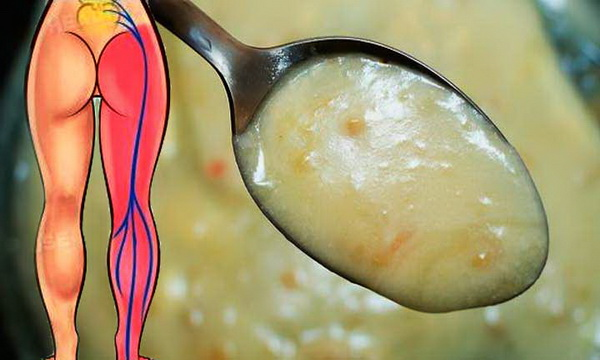 1 Tablespoon Deactivates Sciatic Nerve Pain In Record Time, If You Do Not Give You More!