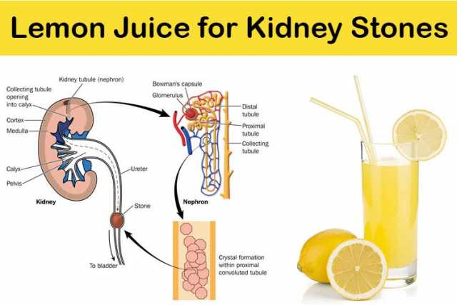 How to flush out kidney stones without medicine