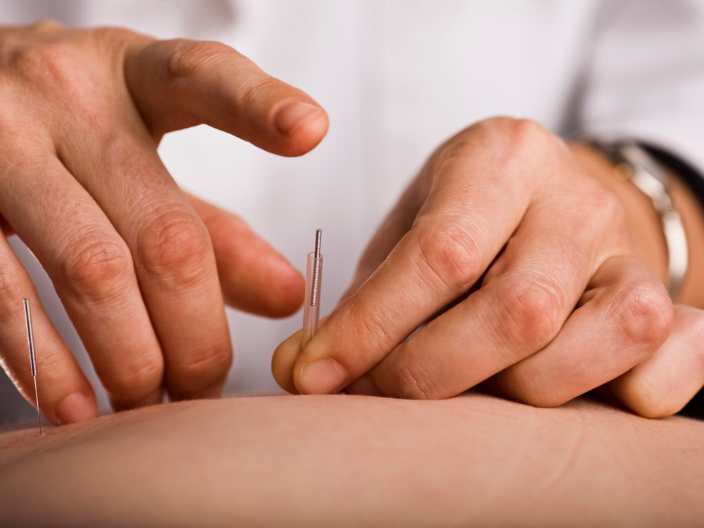 medicalacupuncture.jpg?fit=1024%2C768&ssl=1