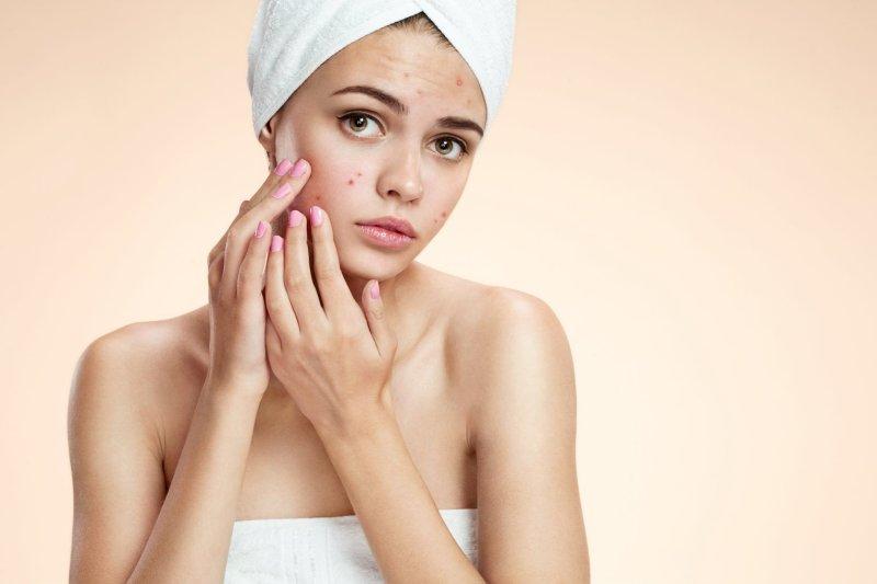 Had de anticonceptiepil invloed op mijn onrustige huid? | Gastblog