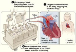 HeartLung Machine Longer During Robotic Valve Surgery