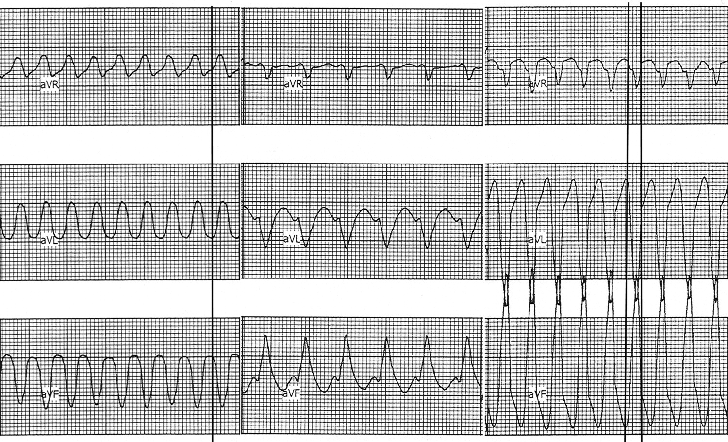 New Algorithm Using Only Lead Avr For Differential Diagnosis Of Wide Qrs Complex Tachycardia