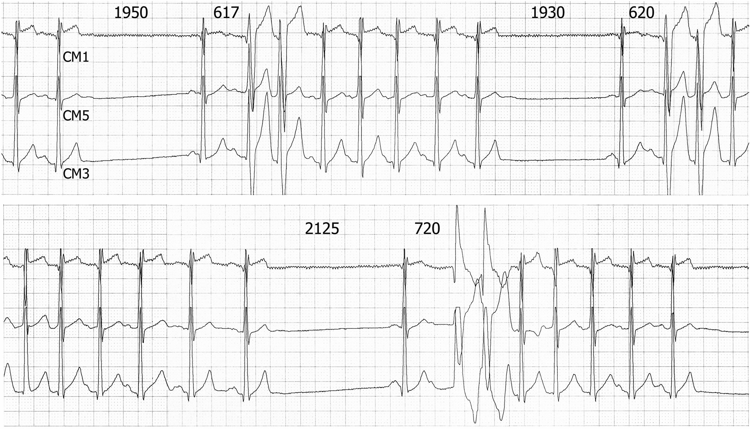 Nonsustained Atrial Tachycardia With Right Or Left Bundle