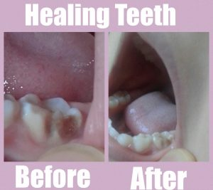 healing tooth naturally