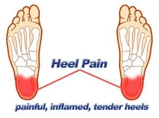 heel pain treatment