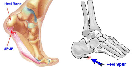 heel spur removal