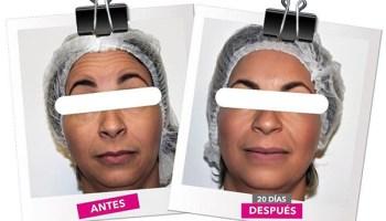 Reducción de arrugas