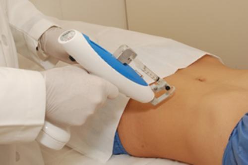 Mesoterapia Para Celulitis y Reducción de Medidas