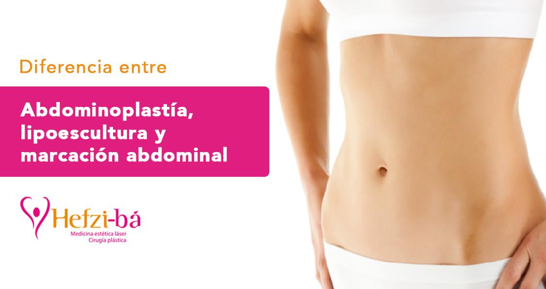 Diferencia entre abdominoplastia, lipoescultura, liposucción y marcación abdominal