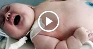 Australian 600-pound woman gave birth to 40-pound largest baby ever born 6