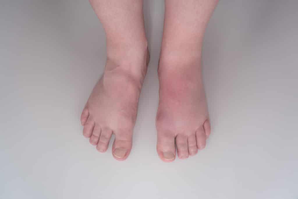 dicke beine durch venenerkrankungen