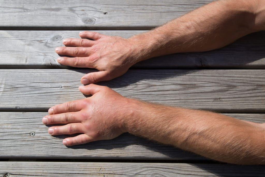 geschwollene hande ursachen diagnose