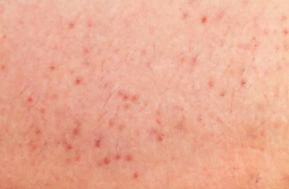 جلد شخص مصاب بالجرب