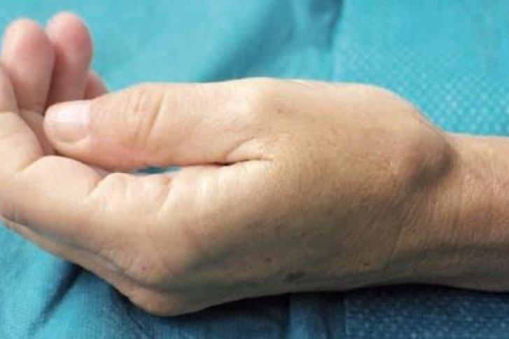 arthrose des daumensattelgelenkes