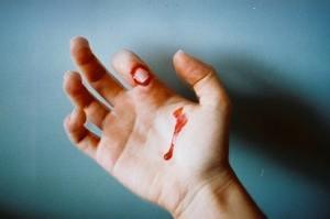 tangan terluka
