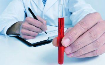 Síntomas y causas de la hemocromatosis