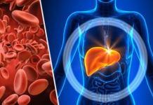 Hemocromatosis: Factores de riesgo, complicaciones y principales tipos