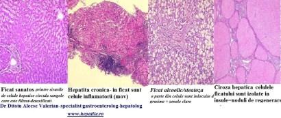 regenerarea ficatului in ciroza