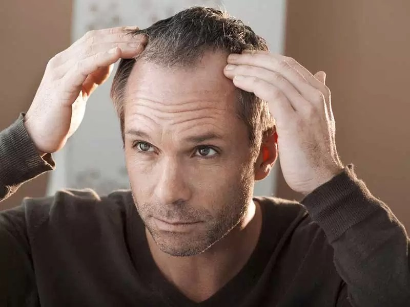 Hairstyles For Men Big Foreheads Hera Hair Beauty