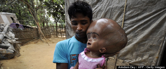 INDIA-HEALTH-SOCIAL-POVERTY-HYDROCEPHALUS