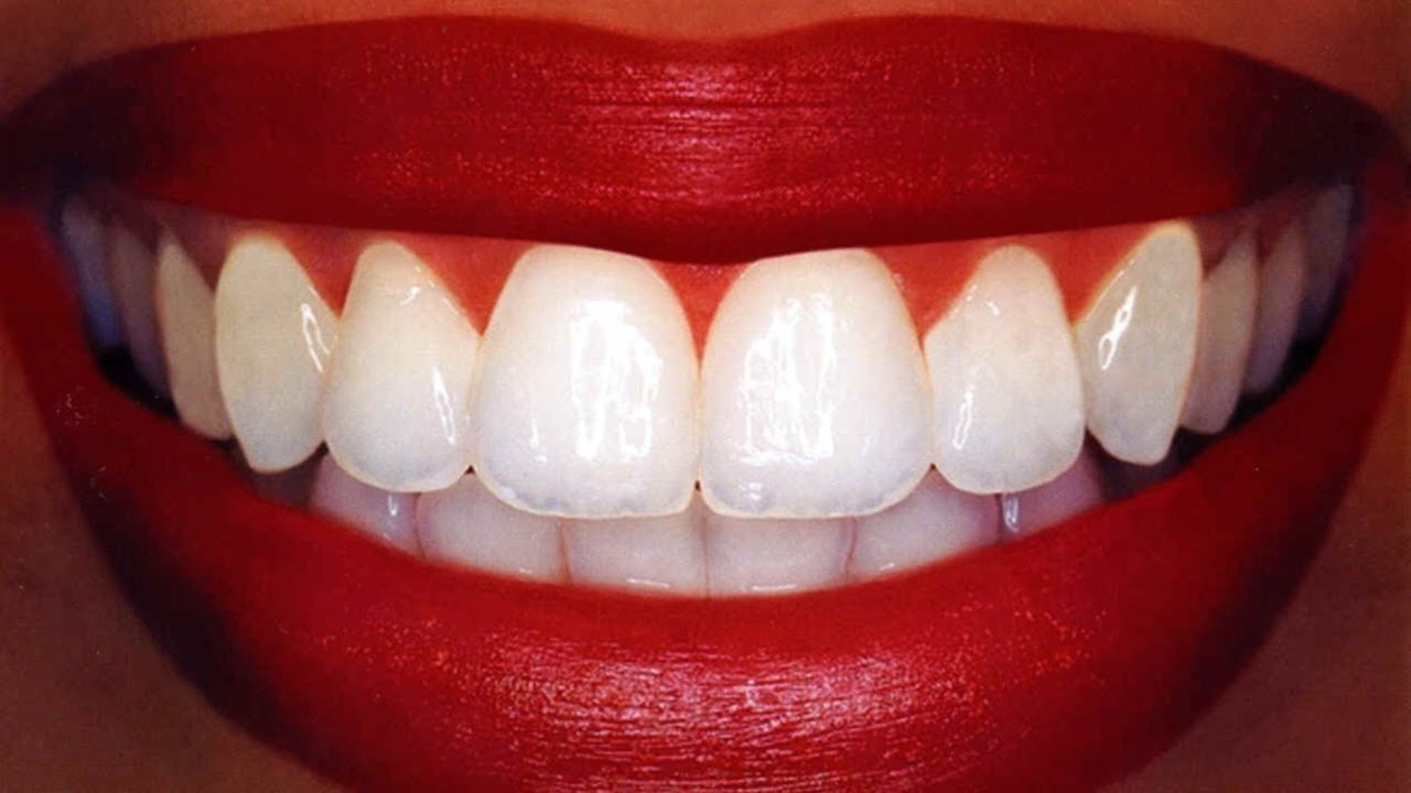 Teeth Whitening At Home In 3 Minutes How To Whiten Your Yellow
