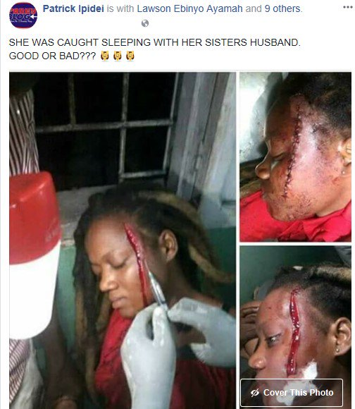 Photos: Lady's face left disfigured for allegedly sleeping with sister's husband