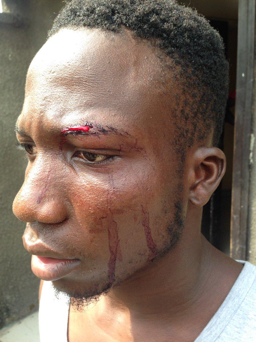 SARS brutality