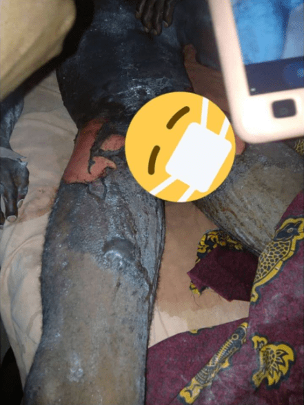 Photos: Wife baths husband with peppered boiling water in Delta