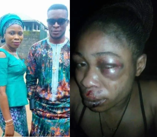 Husband brutalizes wife for refusing to abort 3-months pregnancy