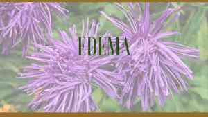 edema herbal remedies