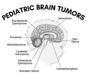 Image of brain showing pediatric tumors