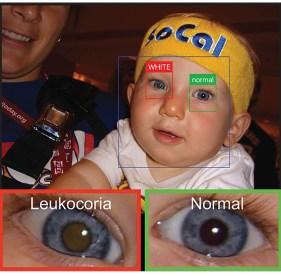 Example of leukocoria