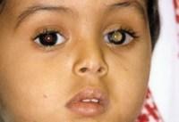 Retinoblastoma in young boy