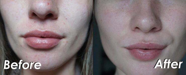 before after lush angels on bare skin