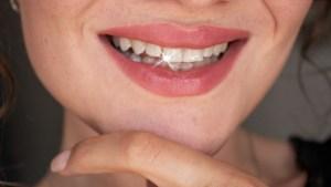 Tanden thuis bleken witter maken whitening