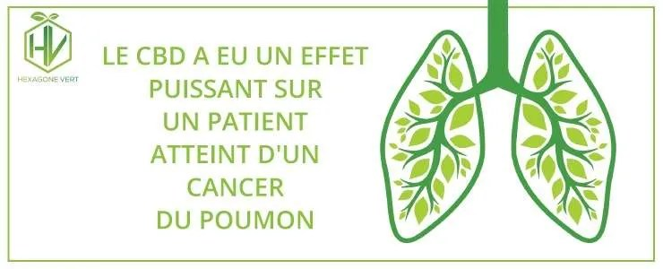 Le CBD a eu un effet puissant sur un patient atteint d'un cancer du poumon