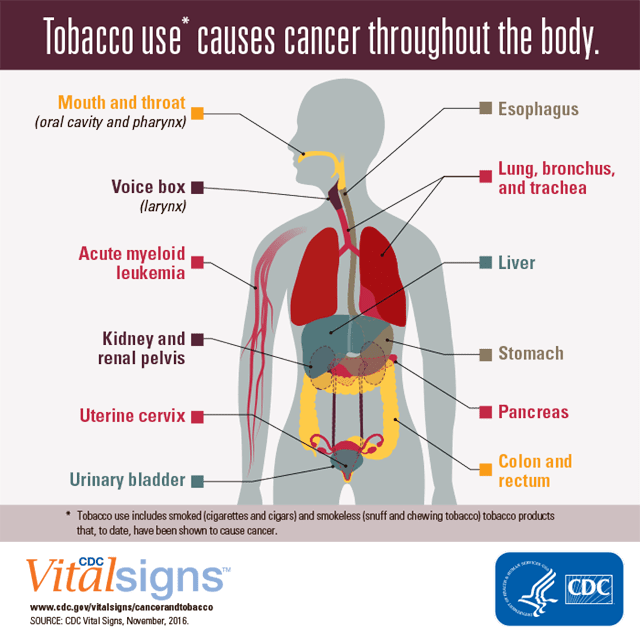 Tobacco Use Is The Leading Preventable Cause Of Cancer And Cancer Deaths Great Plains Qin
