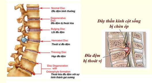 Cot Thoai Vuong Bone Joint Health