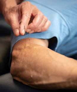dry needling physiotherapy