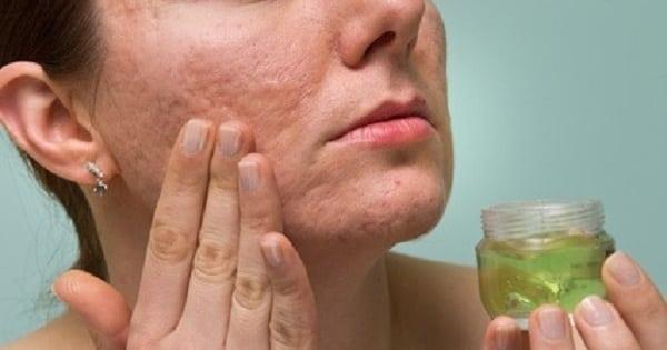 cannabis skin cream