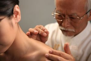 Acupuncture Therapy in North London