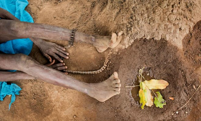 Chains on a woman in norhern Ghana who has schizophrenia: shackling is typically practised by families who believe that mental health conditions are the result of evil spirits or an individual having sinned. Photograph: Robin Hammond/Witness Change/The Guardian