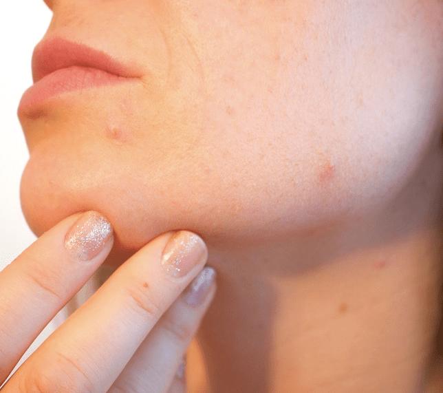 Dieta para acne juvenil
